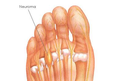 neuroma-morton